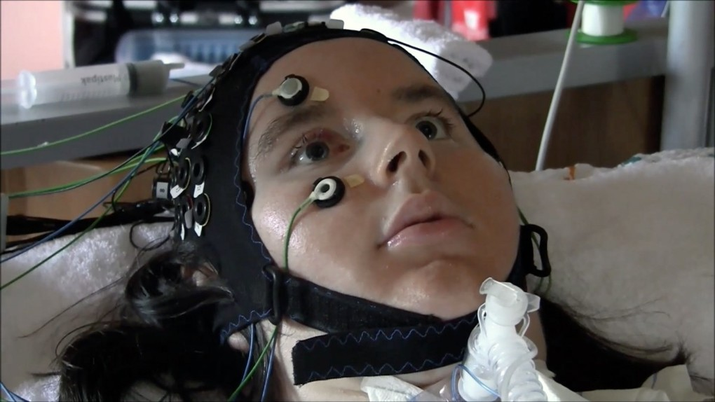 Safety Gas Can >> Mind-reading machine allows completely paralyzed patients to say if they want to live ...